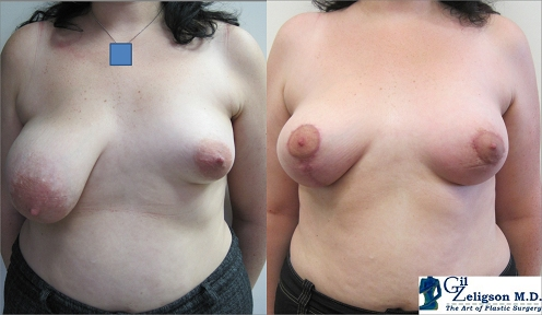 Dr. Gil Zeligson - Breast Asymmetry Correction
