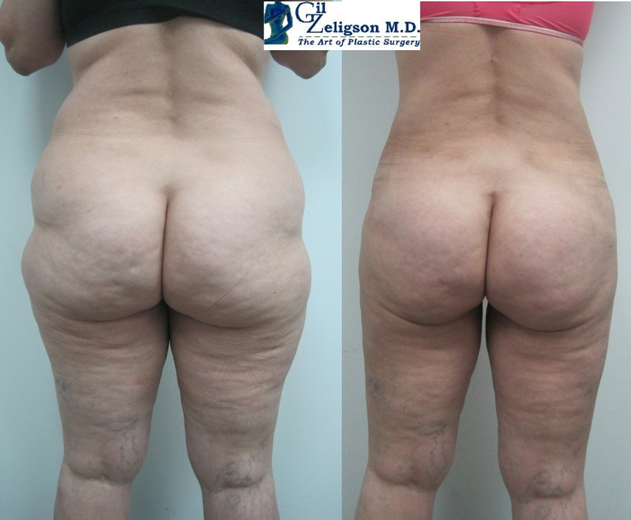 Dr. Gil Zeligson - Liposuction