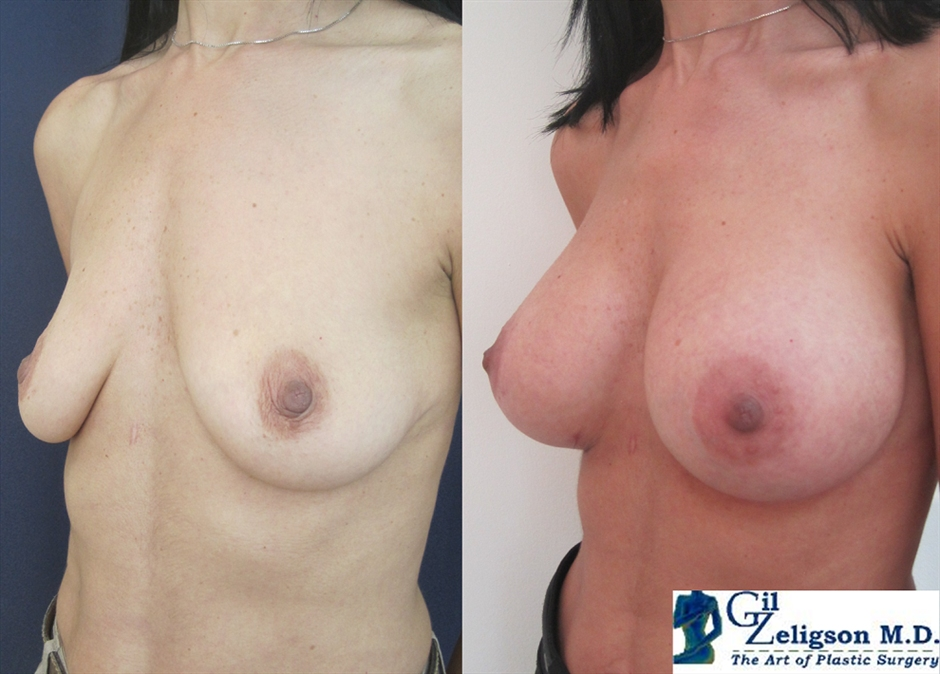 Lifting After Breast Augmentation