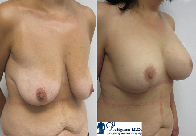 Dr. Gil Zeligson - Lifting After Breast Augmentation