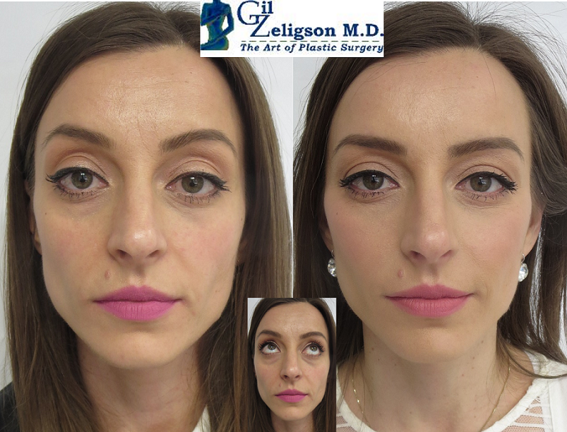 Dr. Gil Zeligson - Facelift whithout operation